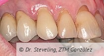 Optimale Papillenregeneration, insbesondere mesial.