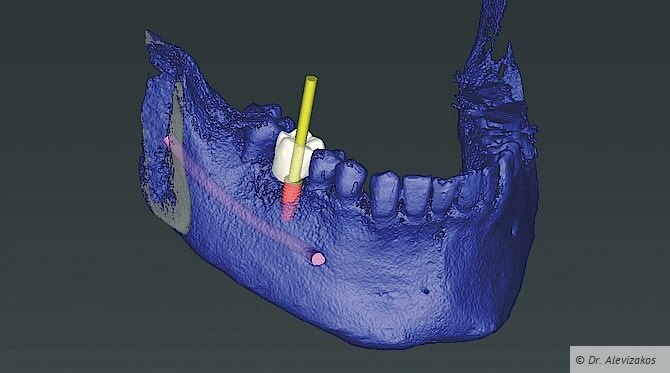 Abb. 1: Das Implantat wird entsprechend der Prothetik positioniert (coDiagnostiX 9.12, Dental Wings).
